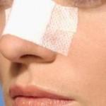 آنچه باید در مورد جراحی بینی بدانید