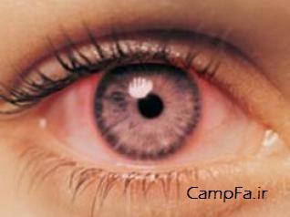 راهی برای رفع قرمزی چشمها بعد از آرایش - www.campfa.ir
